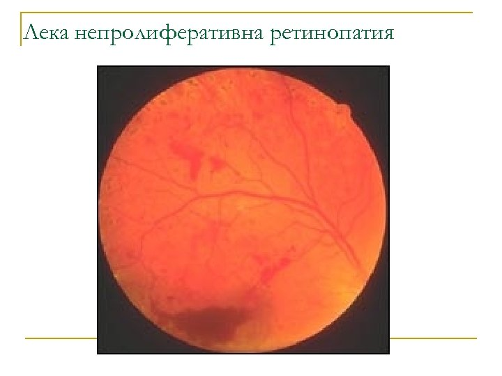 Лека непролиферативна ретинопатия