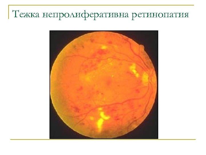 Тежка непролиферативна ретинопатия