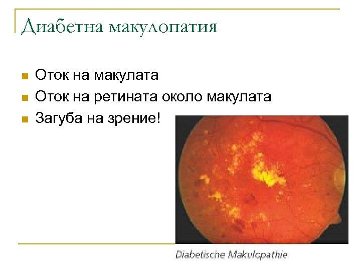 Диабетна макулопатия n n n Оток на макулата Оток на ретината около макулата Загуба