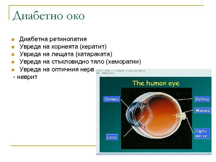 Диабетно око Диабетна ретинопатия n Увреда на корнеята (кератит) n Увреда на лещата (катараката)
