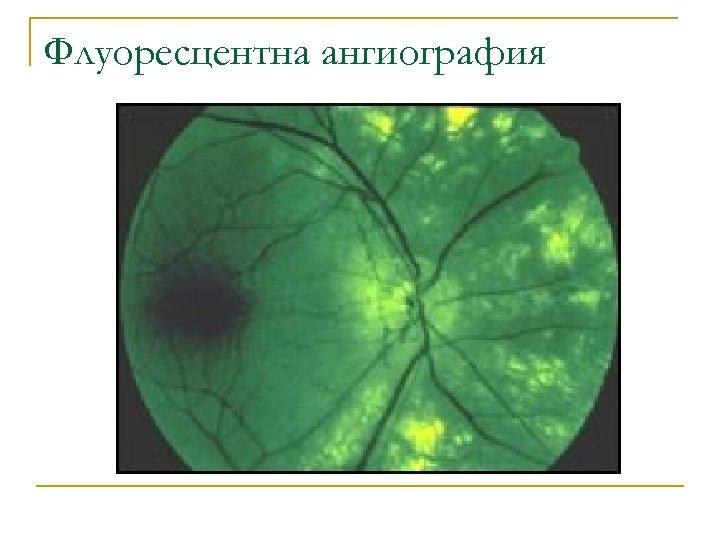 Флуоресцентна ангиография