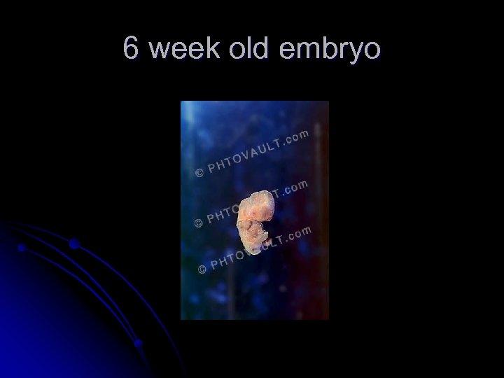 6 week old embryo