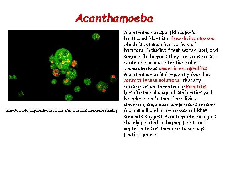 Acanthamoeba • Acanthamoeba trophozoites in culture after immunofluorescence staining Acanthamoeba spp. (Rhizopoda; hartmanellidae) is