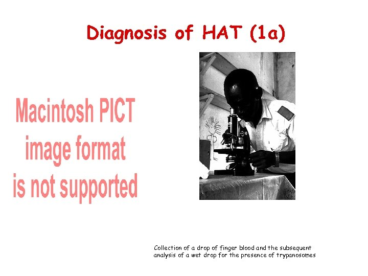 Diagnosis of HAT (1 a) Collection of a drop of finger blood and the