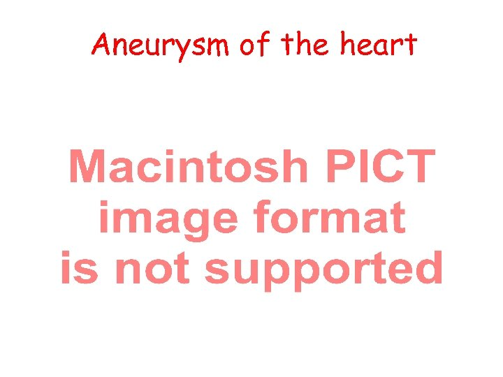 Aneurysm of the heart