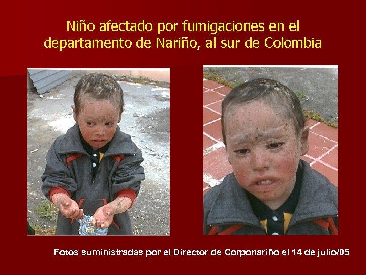 Niño afectado por fumigaciones en el departamento de Nariño, al sur de Colombia Fotos