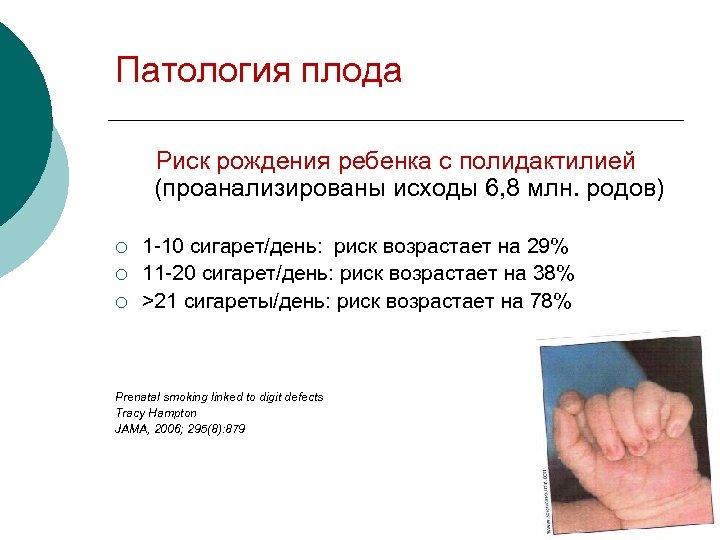 Патология плода Риск рождения ребенка с полидактилией (проанализированы исходы 6, 8 млн. родов) 1