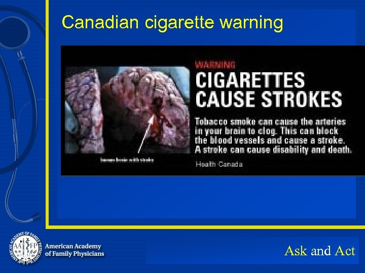 Canadian cigarette warning Ask and Act