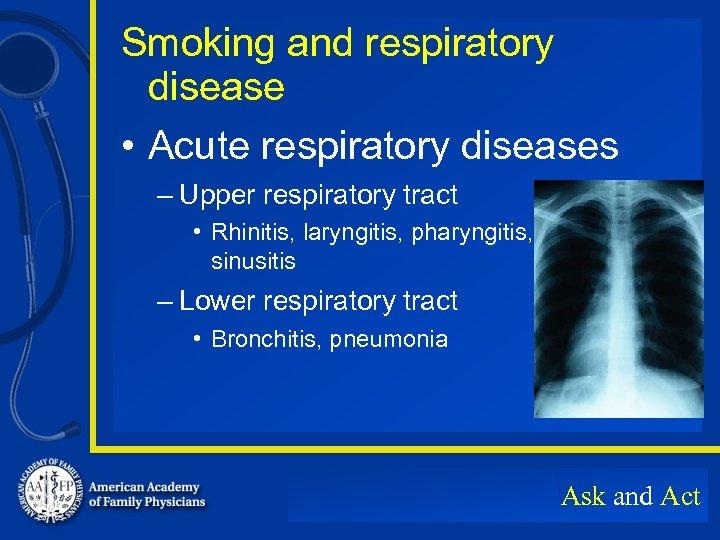 Smoking and respiratory disease • Acute respiratory diseases – Upper respiratory tract • Rhinitis,