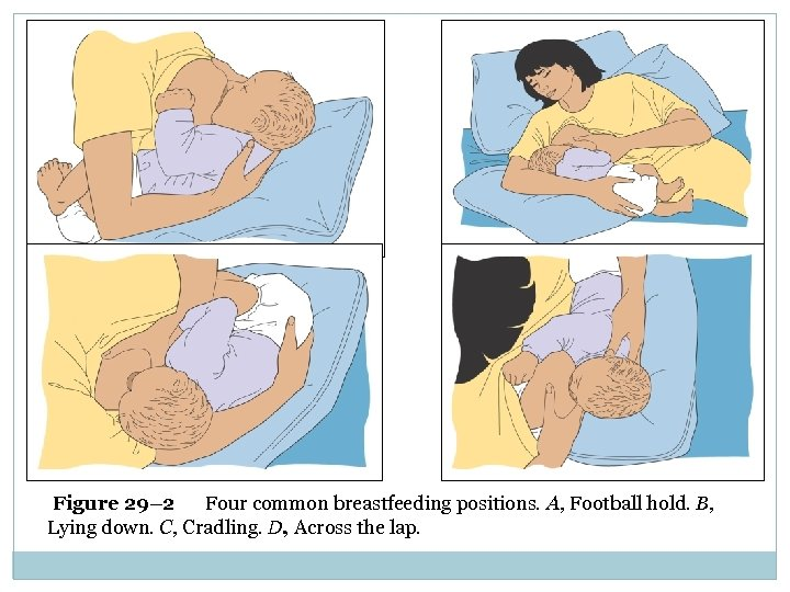 Figure 29– 2 Four common breastfeeding positions. A, Football hold. B, Lying down. C,