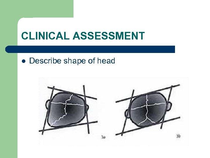 CLINICAL ASSESSMENT l Describe shape of head