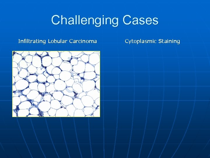 Challenging Cases Infiltrating Lobular Carcinoma Cytoplasmic Staining
