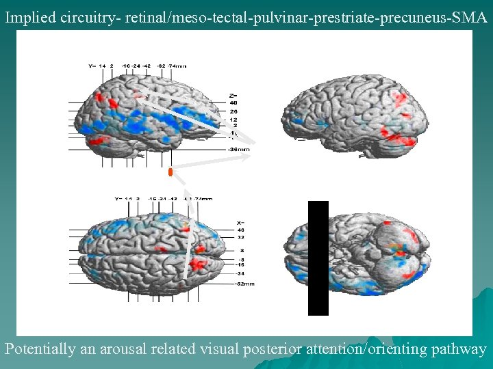 Implied circuitry- retinal/meso-tectal-pulvinar-prestriate-precuneus-SMA Potentially an arousal related visual posterior attention/orienting pathway