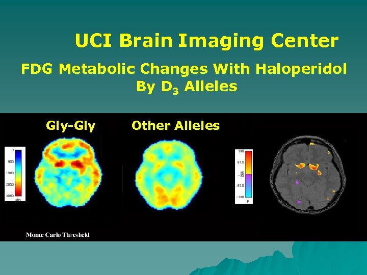 UCI Brain Imaging Center FDG Metabolic Changes With Haloperidol By D 3 Alleles Gly-Gly