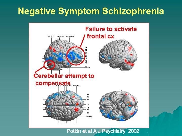 Negative Symptom Schizophrenia Failure to activate frontal cx Cerebellar attempt to compensate Potkin et