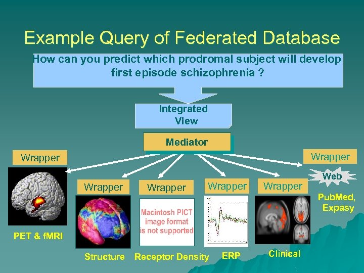 Example Query of Federated Database How can you predict which prodromal subject will develop