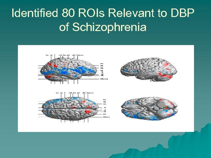 Identified 80 ROIs Relevant to DBP of Schizophrenia