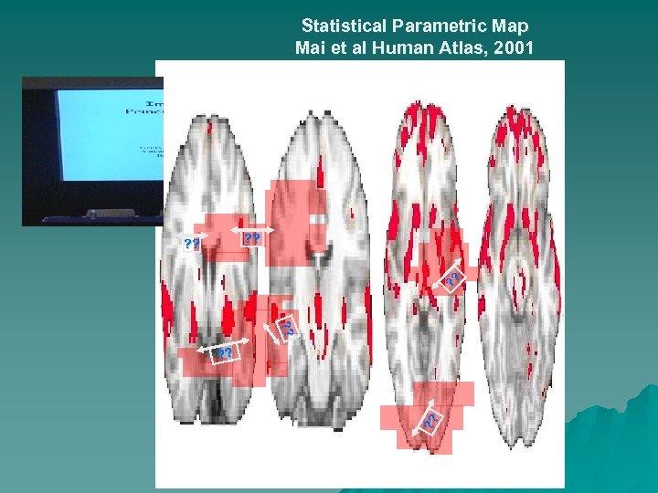 Statistical Parametric Map Mai et al Human Atlas, 2001 ? ? ? ? ?
