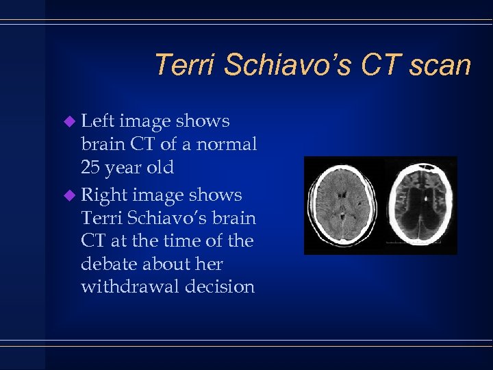 Terri Schiavo's CT scan u Left image shows brain CT of a normal 25