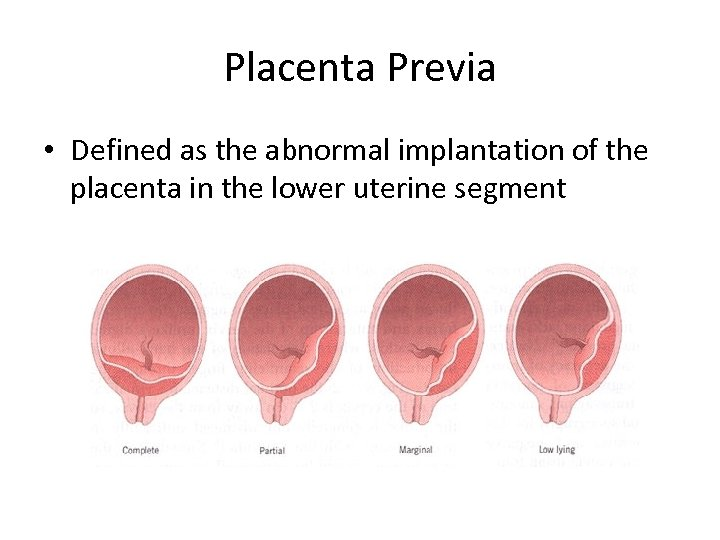 Placenta Previa • Defined as the abnormal implantation of the placenta in the lower