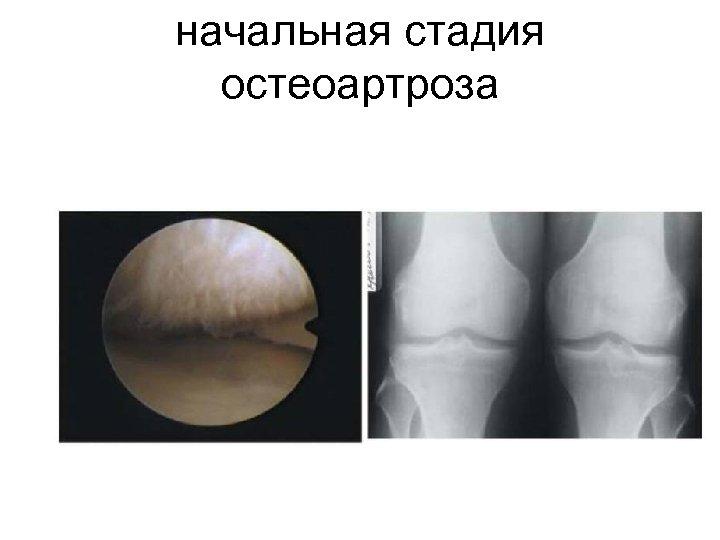 начальная стадия остеоартроза