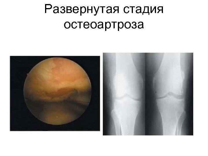 Развернутая стадия остеоартроза