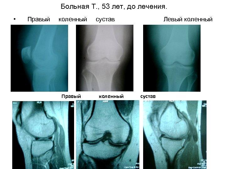 Больная Т. , 53 лет, до лечения. • Правый сустав коленный Левый коленный сустав