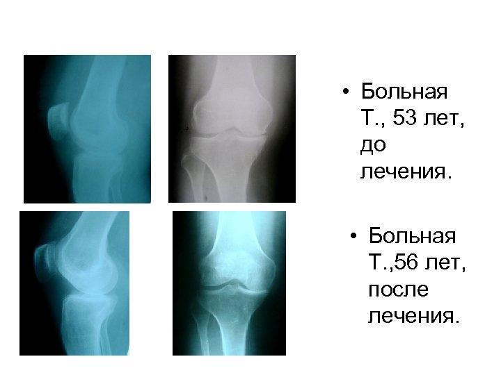 • Больная Т. , 53 лет, до лечения. • Больная Т. , 56
