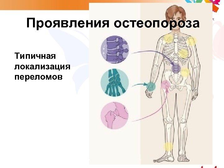 Проявления остеопороза Типичная локализация переломов