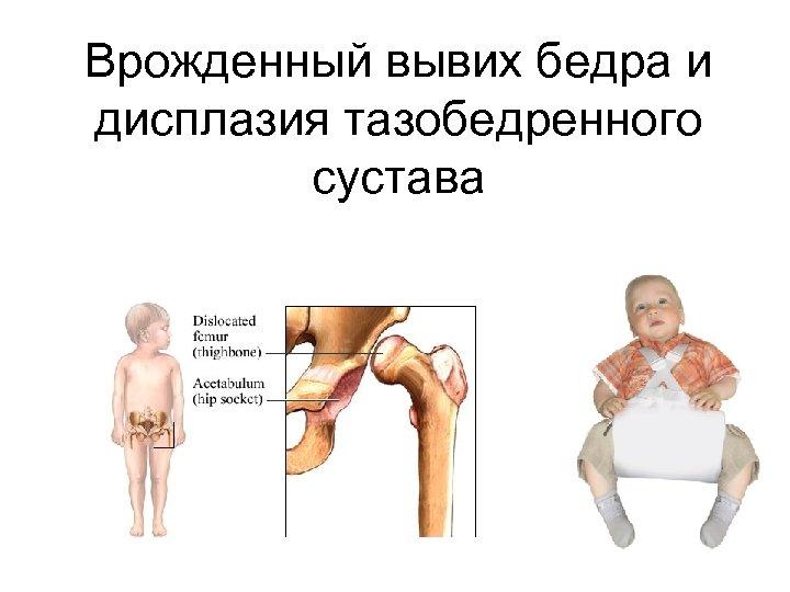 Врожденный вывих бедра и дисплазия тазобедренного сустава