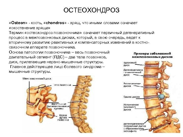 ОСТЕОХОНДРОЗ «Osteon» - кость, «chondros» - хрящ, что иными словами означает «окостенение хряща» Термин