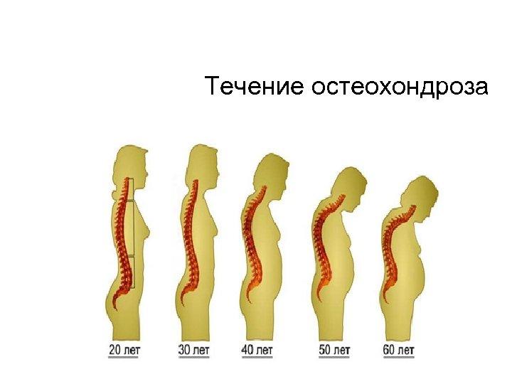 Течение остеохондроза