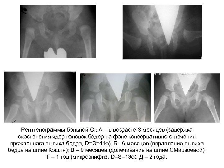 Рентгенограммы больной С. : А – в возрасте 3 месяцев (задержка окостенения ядер головок