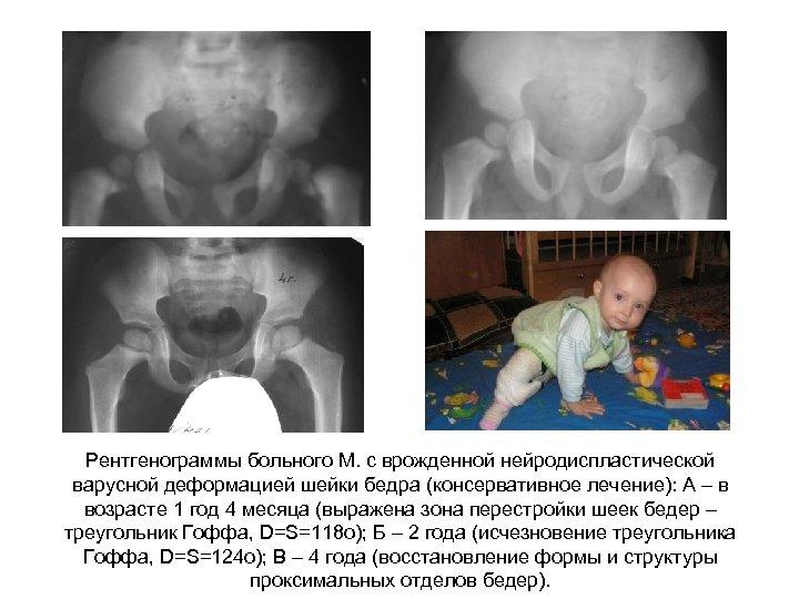Рентгенограммы больного М. с врожденной нейродиспластической варусной деформацией шейки бедра (консервативное лечение): А –