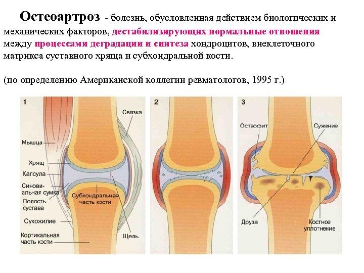 Остеоартроз - болезнь, обусловленная действием биологических и механических факторов, дестабилизирующих нормальные отношения между процессами