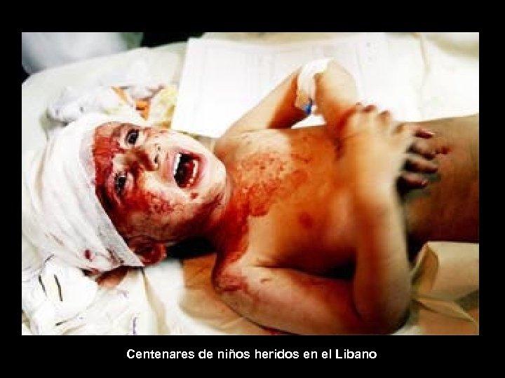 Centenares de niños heridos en el Libano
