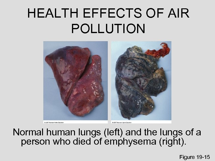 HEALTH EFFECTS OF AIR POLLUTION Normal human lungs (left) and the lungs of a