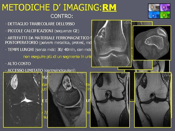 METODICHE D' IMAGING: RM CONTRO: - DETTAGLIO TRABECOLARE DELL' 0 SSO - PICCOLE CALCIFICAZIONI