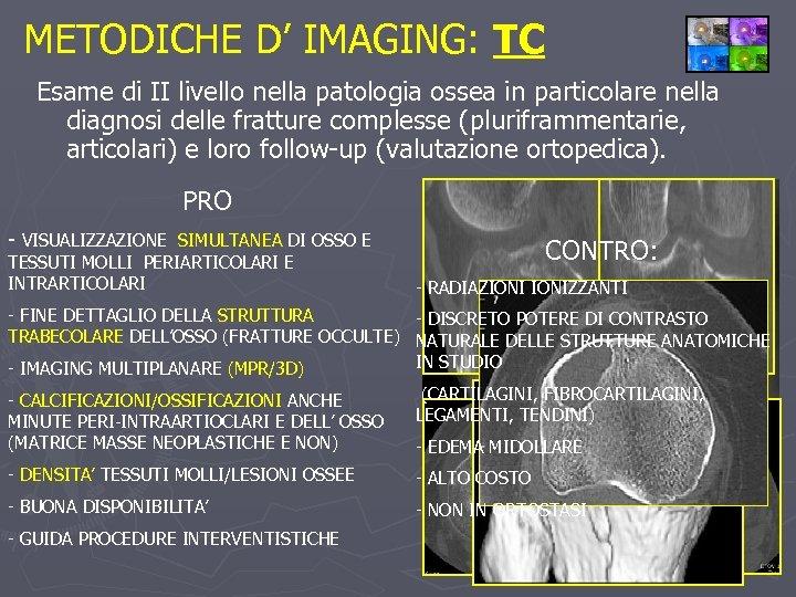 METODICHE D' IMAGING: TC Esame di II livello nella patologia ossea in particolare nella
