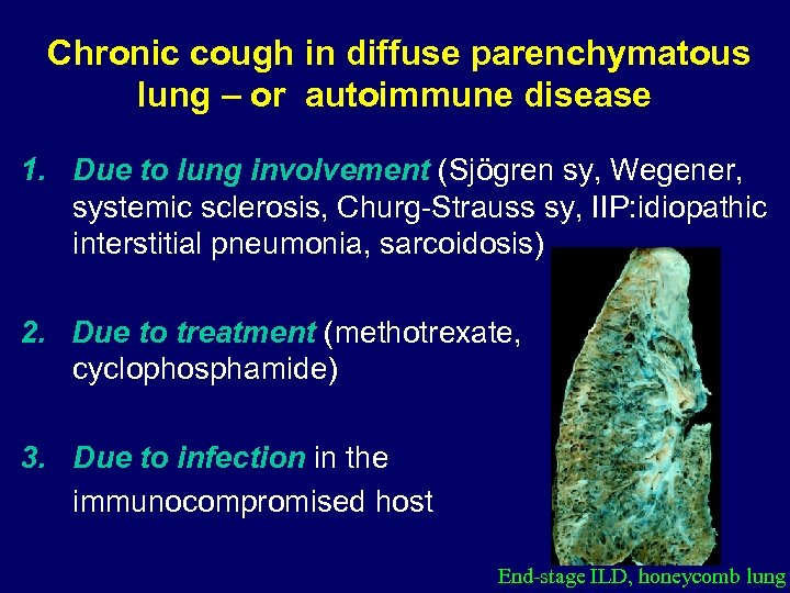 Chronic cough in diffuse parenchymatous lung – or autoimmune disease 1. Due to lung