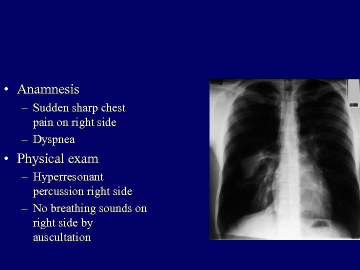• Anamnesis – Sudden sharp chest pain on right side – Dyspnea •