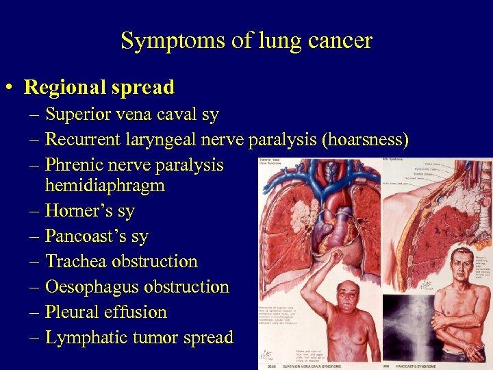 Symptoms of lung cancer • Regional spread – Superior vena caval sy – Recurrent