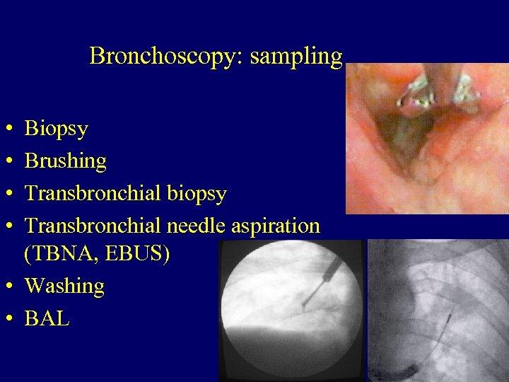 Bronchoscopy: sampling • • Biopsy Brushing Transbronchial biopsy Transbronchial needle aspiration (TBNA, EBUS) •