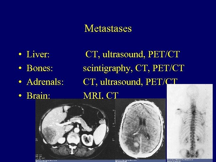 Metastases • • Liver: Bones: Adrenals: Brain: CT, ultrasound, PET/CT scintigraphy, CT, PET/CT CT,