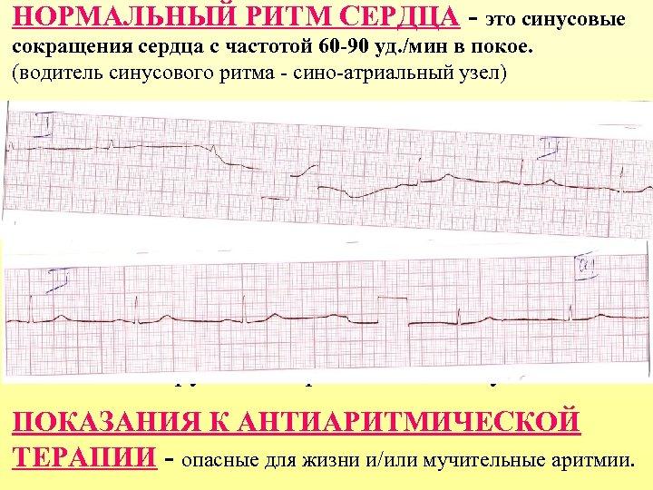 НОРМАЛЬНЫЙ РИТМ СЕРДЦА - это синусовые сокращения сердца с частотой 60 -90 уд. /мин