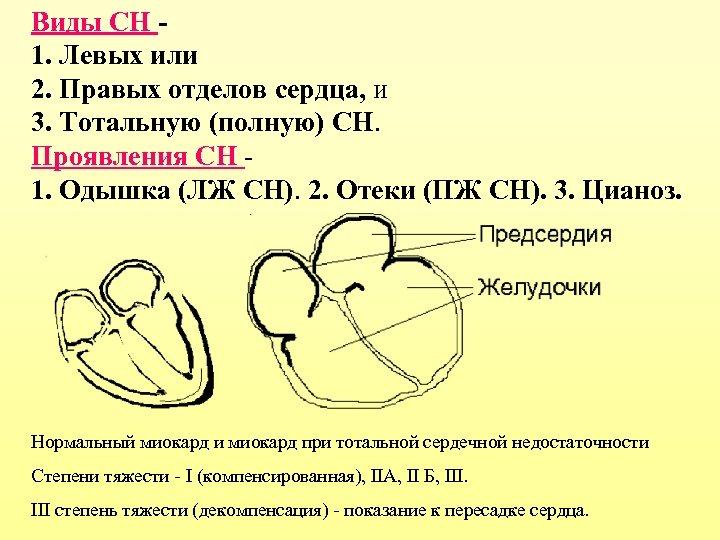 Виды СН 1. Левых или 2. Правых отделов сердца, и 3. Тотальную (полную) СН.