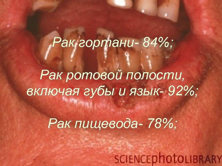 Основные признаки рака слизистой полости рта.