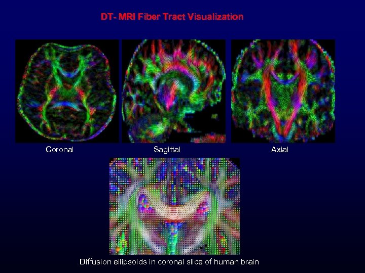DT- MRI Fiber Tract Visualization Coronal Sagittal Diffusion ellipsoids in coronal slice of human