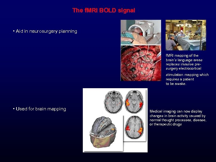 The f. MRI BOLD signal • Aid in neurosurgery planning f. MRI mapping of