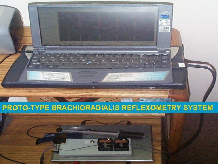 PROTO-TYPE BRACHIORADIALIS REFLEXOMETRY SYSTEM
